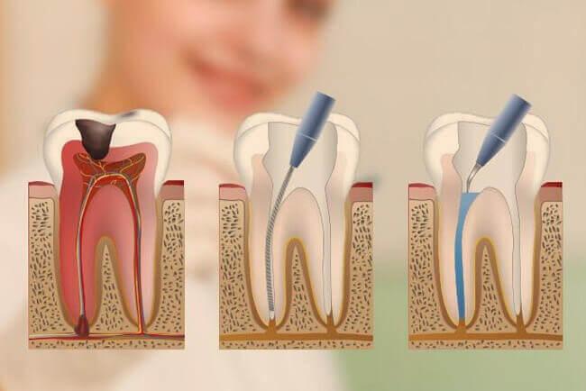 endodoncia-proceso