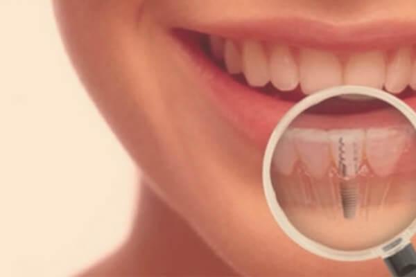 implantología bucodental