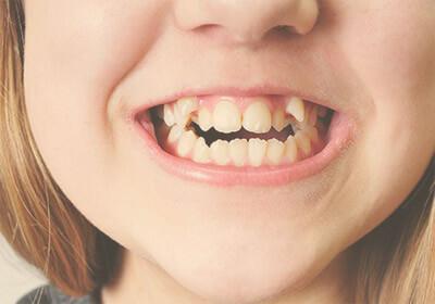 ortodoncia-apinamiento