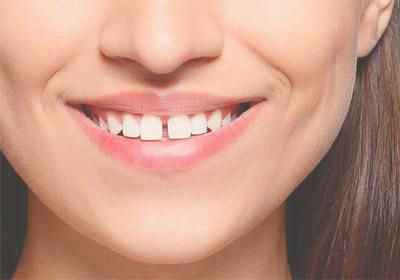 ortodoncia-diastemas