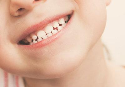 ortodoncia-mordida-invertida